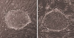 Induced pluripotent stem cells (iPS cells) cultured in a dish.
