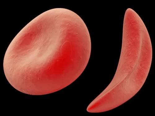 sickle cell and the promise of