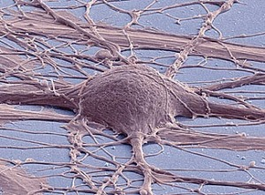 Scanning electron micrograph of cultured human neuron from induced pluripotent stem cell.  [Credit: Mark Ellisman and Thomas Deerinck, National Center for Microscopy and Imaging Research, UC San Diego]