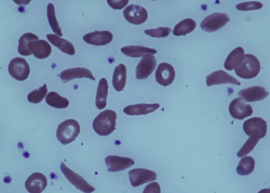 Magnified blood sample of a patient with severe sickle cell disease.