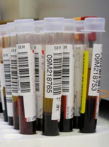 Could a simple blood test predict your risk for one day developing Alzheimer's disease?