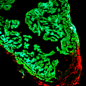 New cells (red) repairing injury in a zebra fish heart.