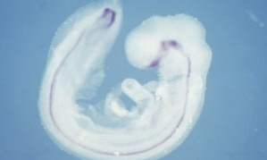 Scientists have found a way to grow spinal cords from embryonic stem cells in a petri dish. [Credit: Abigail Tucker/ MRC Centre for Developmental Neurobiology/ Wellcome Images.]