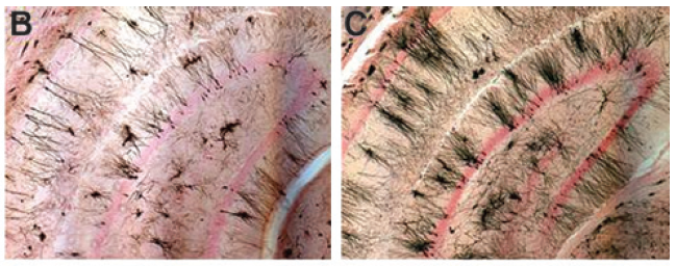 Rat nerve cells (black structures) in memory center of the brain are damaged by chemotherapy (left); transplanting human nerve stem cells reverses the damage (right)