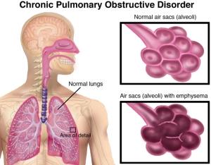 COPD-Large