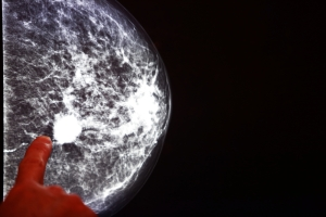 Some forms of breast cancer tumors can actually turn the body's own immune system against itself.