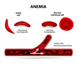 In Sickle Cell Disease, the misshapen red blood cells cause painful blood clots and a host of other complications.