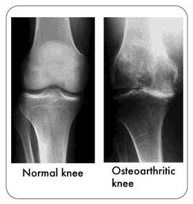 xray-osteoarthritic-knee