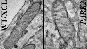 Mitochondria from iPSC-derived neurons. On the left is a neuron derived from a healthy individual, while the image on the right shows a neuron derived from someone with the Park2 mutation, the most common mutation in Parkinson's disease (Credit: Akos Gerencser)