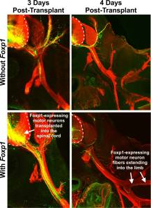 These images reveal the significance of the 'Foxp1 effect.' The Foxp1 transcription factor is crucial to the normal growth and function of motor neurons involved in limb-movement.