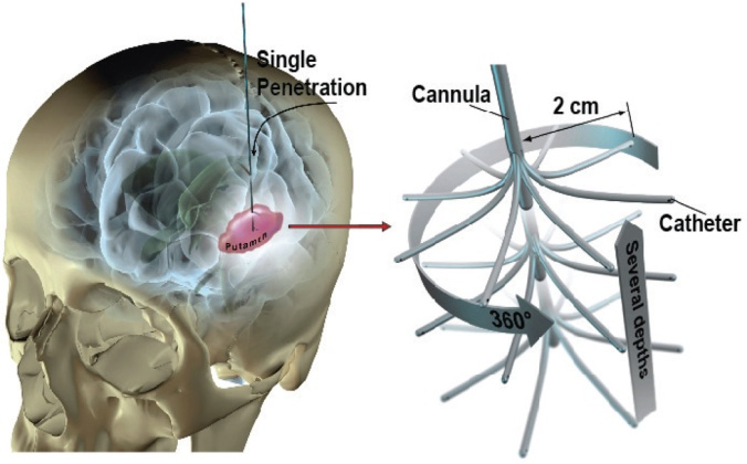 The Branched Point Device allows a well distributed cell transplantation into the brain with just one injection site. (image credit: Stereotact Funct Neurosurg. 2013; 91(2): 92–103.)