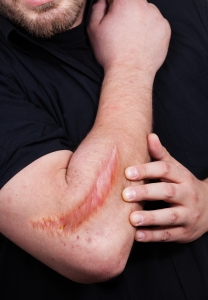Scars, both internal and external, present a significant biomedical burden.