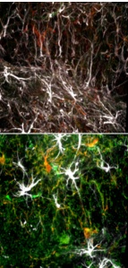 Young brain cells (top) show little of the molecule that impairs stem cell function (green) that is abundant in old cells (bottom).