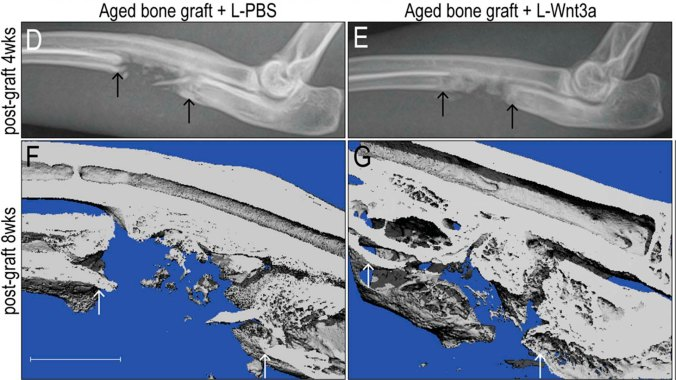 Helms_bonegraft