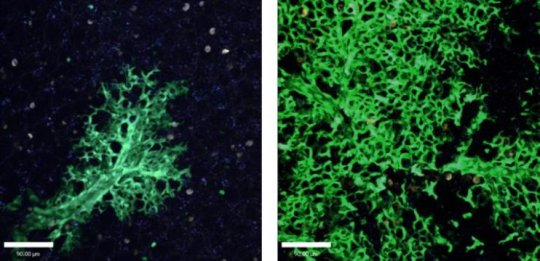 Transplanted lung cells continued to grow at six weeks (left) and 16 weeks (right).