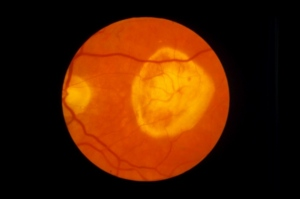 A retina of a patient with macular degeneration. (Photo credit: Paul Parker/SPL)