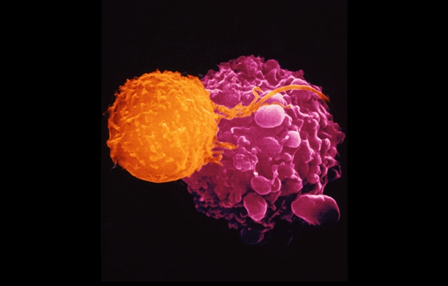 T-VEC recruits immune cells (orange) to attack cancer cells (pink) credit Dr. Andrejs Liepins/SPL