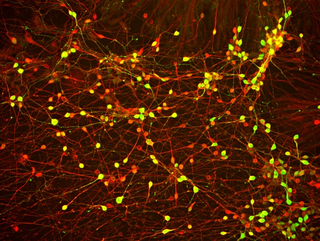 Neurons generated from FTD patient iPSCs. (Image courtesy of Helen Fong)