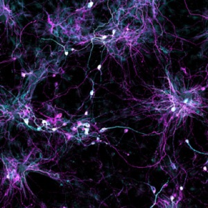 Skin cell samples from elderly human donors are directly converted into induced neurons (iNs), shown. (image: Courtesy of the Salk Institute for Biological Studies)