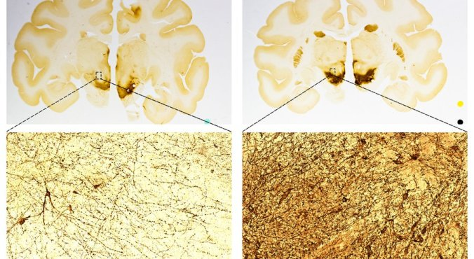 A comparison of primate brains to show an increase in the number of neurons after treatment with ISCO's stem cells. The left side is a control sample. The right side is from a treated brain. — International Stem Cell Corp.