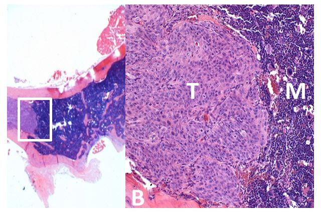 Microscopic view of a hip bone (left) and a magnified view of the bone showing the metastasized prostate cancer tumor (T), healthy bone marrow (M) and bone (B). Image courtesy of the UCLA Broad Stem Cell Research Center.