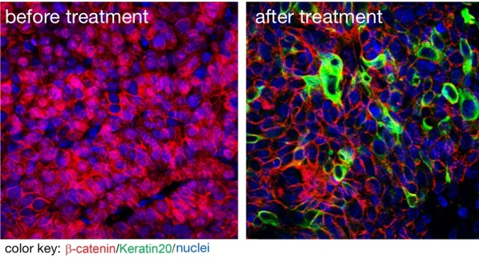 A new drug kills that cancer stem cells. The image on the left shows beta catenin (red) in cell nuclei indicating that these are cancer stem cells. The image on the right shows that the new substance sucessfully removed beta catenin from the nuclei. Picture by Liang Fang for the MDC