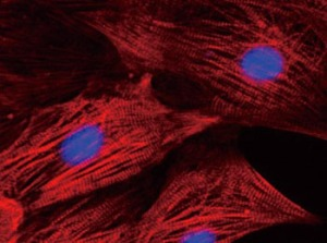 Normal heart muscle cells, courtesy Kyoto University