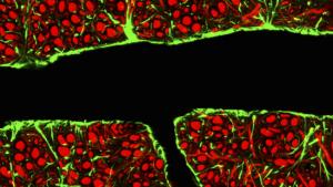 Blood Brain Barrier. Credit: C.J. Guerin, MRC Toxicology Unit / Science Source.