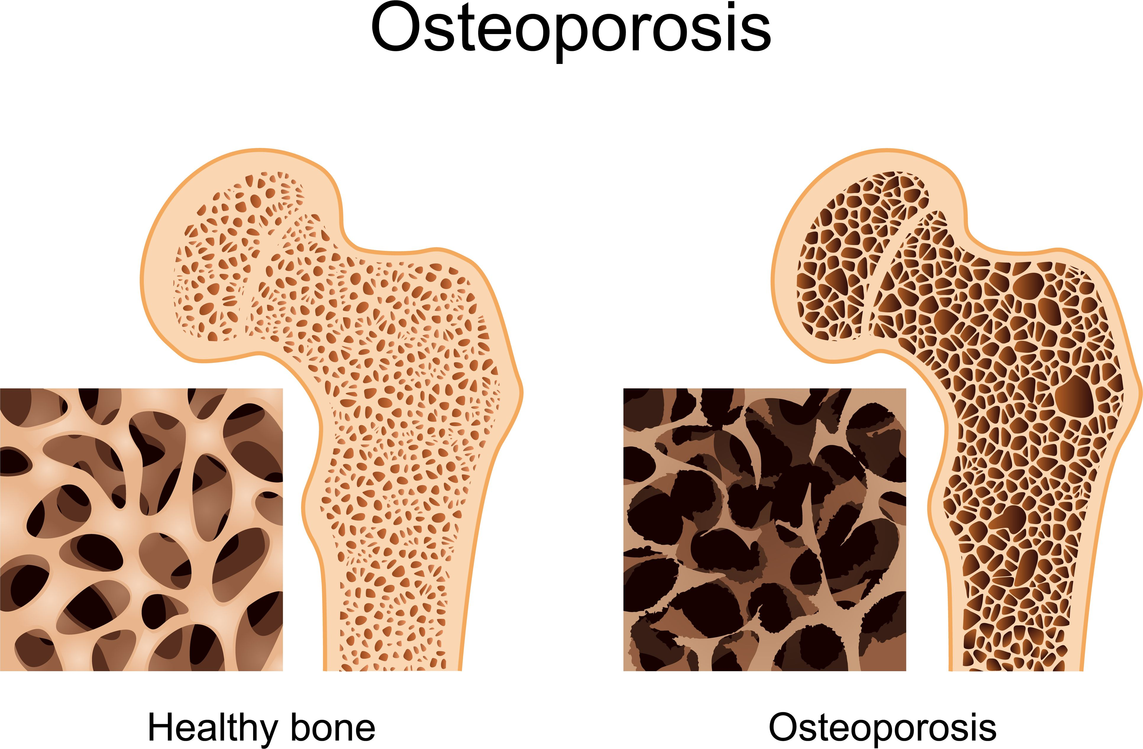 A Tale Of Two Stem Cell Treatments For Growing New Bones The Stem