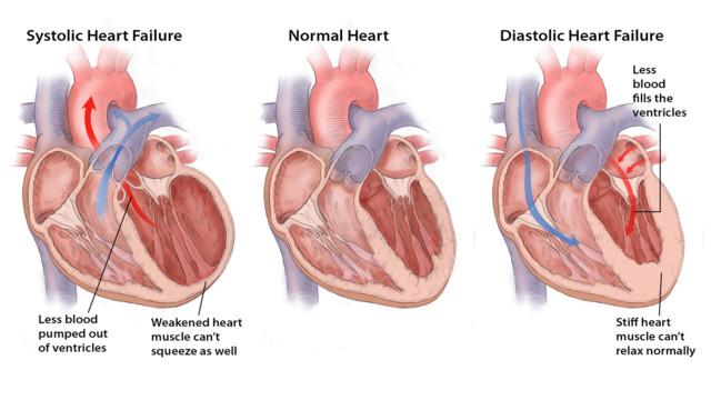 SystolicDiastolic_Heartfailure.5518685646fab
