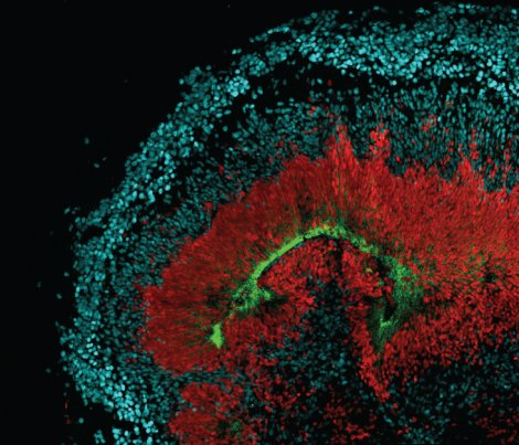 An image of tissue that's grown in a dish shows radial glia stem cells that are red, neurons in blue and the AXL receptor in green. Photo by Elizabeth DiLullo