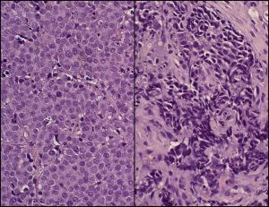 Normal prostate cells (left) and neuroendocrine prostate cancer cells (right). (UCLA news release)