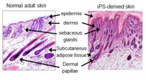 normal-and-ips-skin