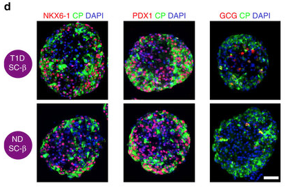 Beta cells derived from type 1 diabetes patient stem cells (top) express the same beta cell markers as beta cells derived from non-diabetic (ND) patients.