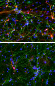 Neurons derived from people with ASD (bottom) form fewer inhibitory connections (red) compared to those derived from healthy individuals (top panel). (Salk Institute)