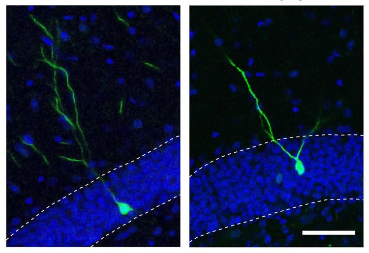 mir19-schizophrenia-neurosciencenews