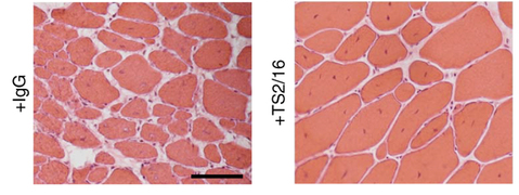 Muscle loss seen in muscular dystrophy mice (left). Treatment with beta1 intern boosts muscle regeneration in the same mice (right). (Nature Medicine)