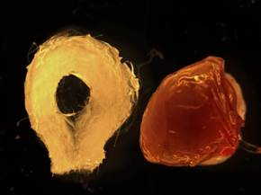 Biodegradable scaffold (left) and human tissue-engineered liver (right) (Photo courtesy of The Saban Research Institute at Children's Hospital Los Angeles)