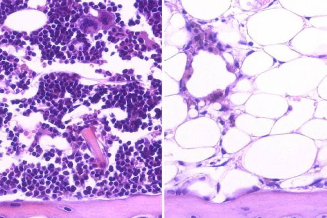 After radiation, blood cells (purple) regenerated in bone marrow when mice were given DKK1 intravenously (left), but not in those that received saline solution (right). (UCLA/Nature Medicine)