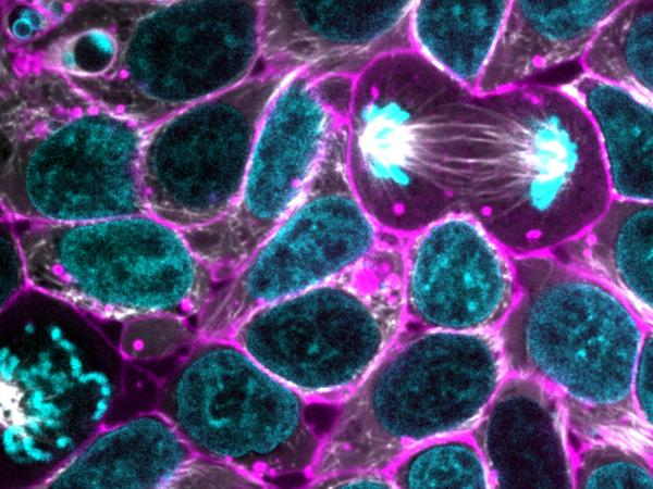 Glowing human stem cells. The edges of the cells are shown in purple while the DNA in the cell's nucleus is in blue. (Allen Institute for Cell Science).