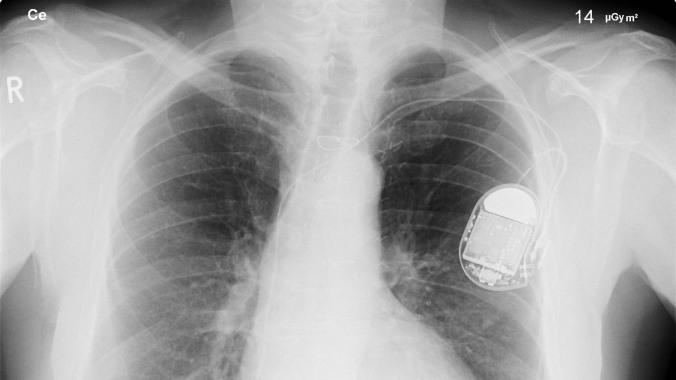 blog-pacemaker1920x1080