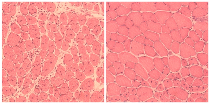 (Left) impaired muscle repair in aged mice; (right) improved muscle regeneration in aged mice subjected to reprogramming. (Salk Institute)