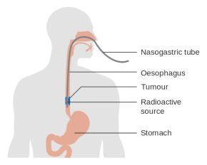 diagram_showing_internal_radiotherapy_for_cancer_of_the_oesophagus_cruk_162-svg