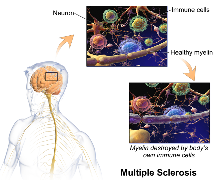 Could Stem Cells Help Beat Multiple Sclerosis? | The Stem Cellar
