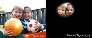 retinitis pigmentosas_1