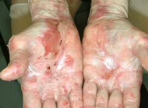 epidermolysis-bullosa-29502