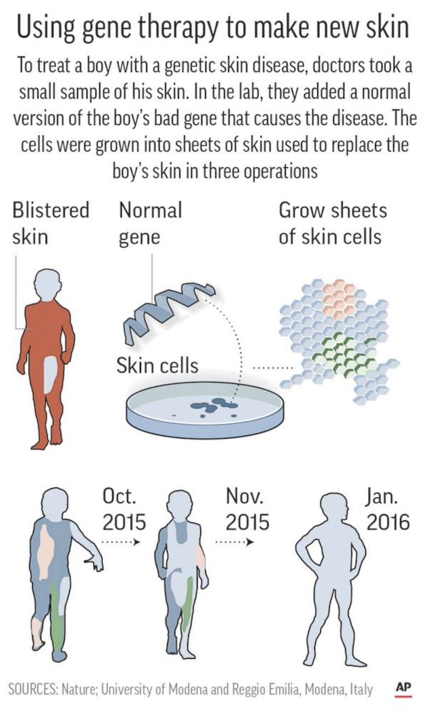 skin-gene-therapy-graphic-ap-ps-171108_3x5_992