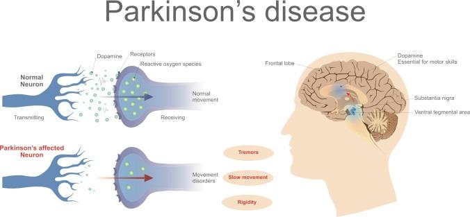 Parkinsonsshutterstock_604375424