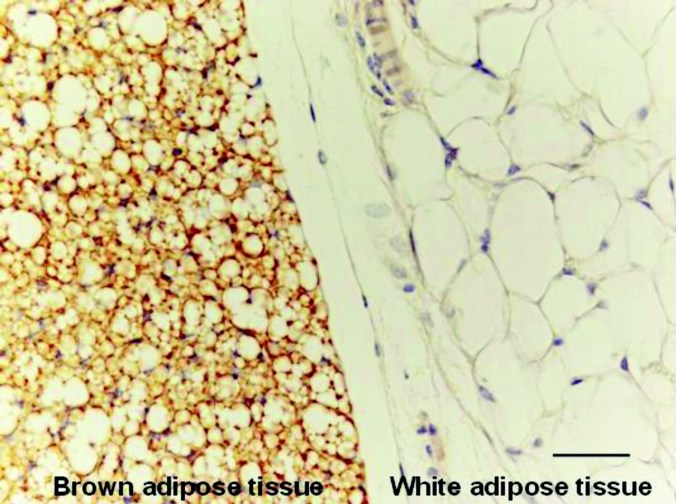 Brown-and-White-adipose-tissue