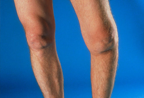 how to build big legs with bad knees